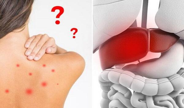 Mẩn ngứa, mụn nhọt do gan suy giảm chức năng: Bệnh dễ tác quái vào mùa nắng nóng