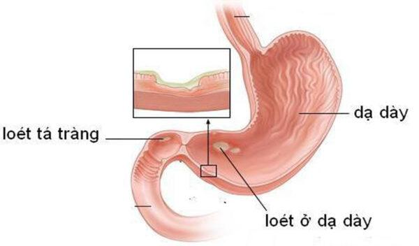 Tìm hiểu về bệnh viêm loét dạ dày – Tá tràng