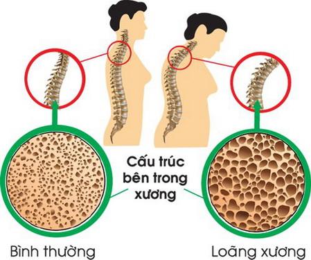 Làm gì để tránh loãng xương?
