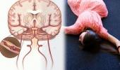 Phòng ngừa tai biến mạch máu não và di chứng