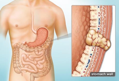 Thuốc mới trị khối u mô đệm đường tiêu hóa tiến triển