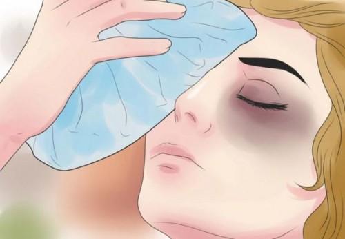 Xử trí và phòng ngừa một số tai nạn mắt tại nhà